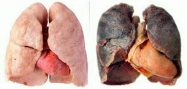 أضرار التدخين على صحة الجسم