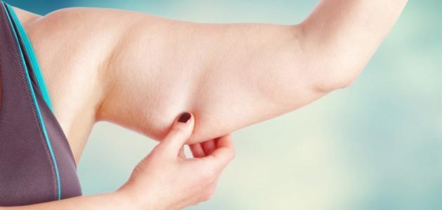 علاج ترهلات الجسم بعد الرجيم