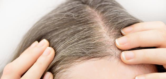علاج لشيب الشعر