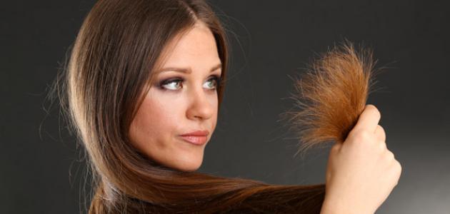 علاج لتقصف الشعر من الأمام