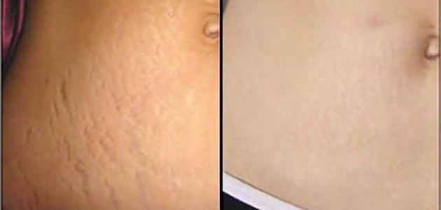 التخلص من علامات تمدد الجلد