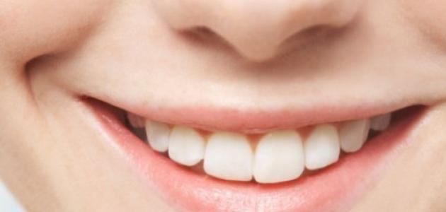 علاج للسواد حول الفم