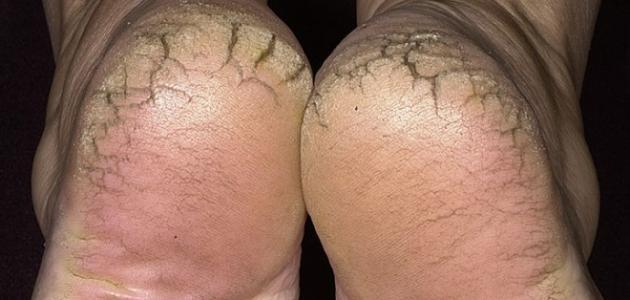 كيفية التخلص من تشققات القدمين