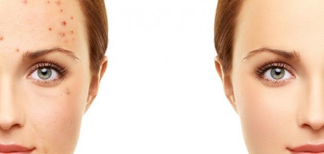 طرق لإزالة آثار الحبوب من الوجه