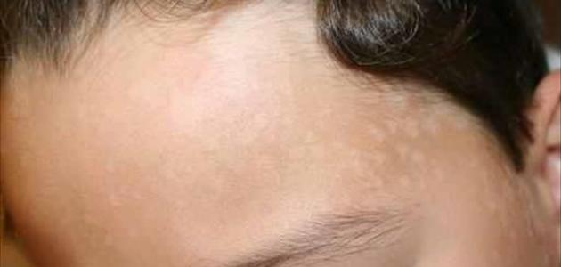 ظهور بقع بيضاء صغيرة على الجلد