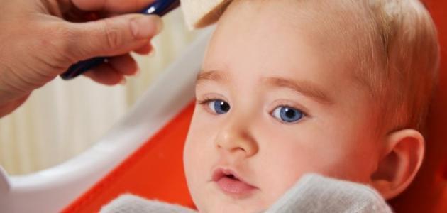 علاج قشرة الرأس عند الأطفال
