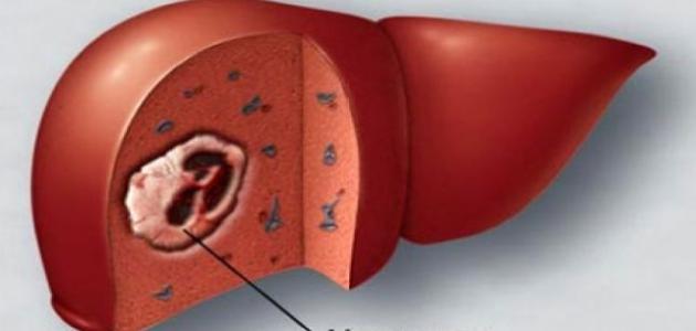 ما معنى تضخم الكبد