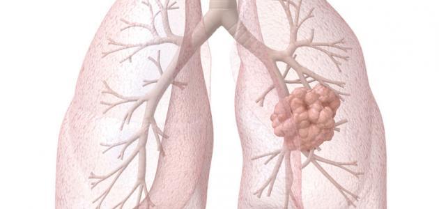 ما هو علاج مرض ذات الرئة