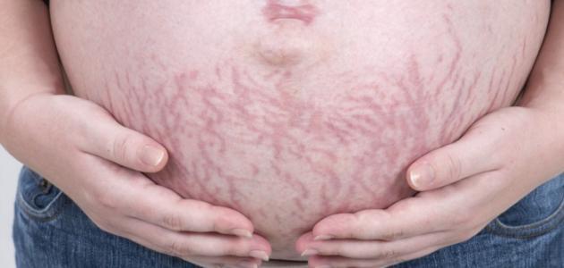 إزالة علامات تمدد الجلد