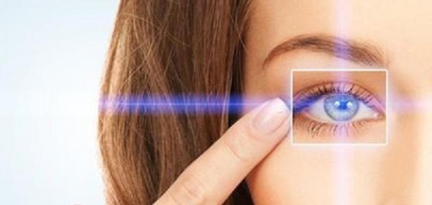 مضاعفات عملية الليزك للعيون