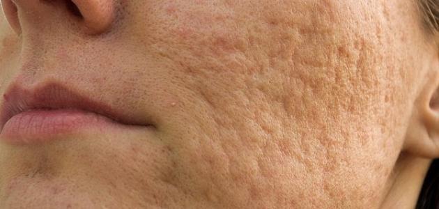 خلطة لإزالة آثار الحبوب وتصفية الوجه