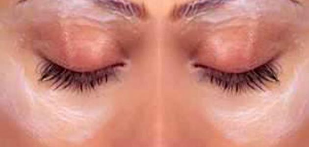 علاج للهالات السوداء حول العينين