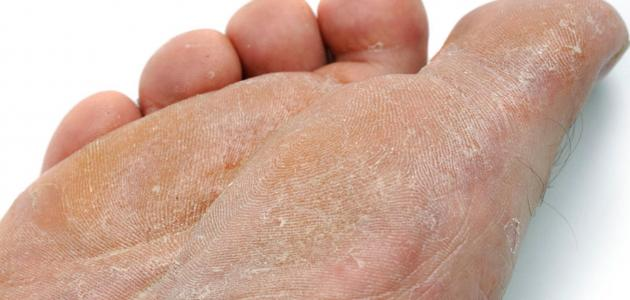 أسباب فطريات القدم
