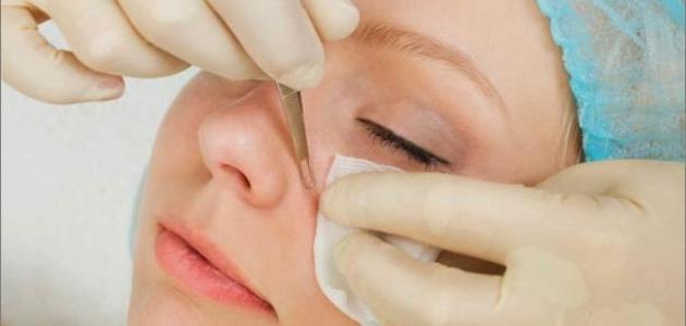 وصفة لإزالة الكلف وتبييض الوجه
