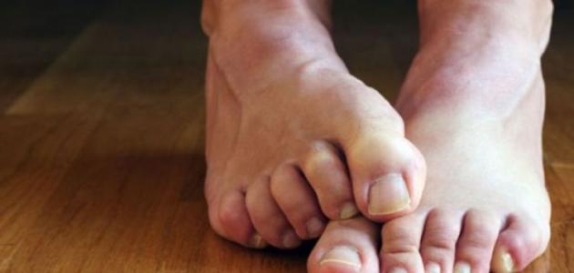 نقص المغنيسيوم في الجسم