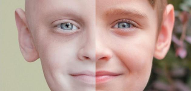 مقال عن مرض السرطان