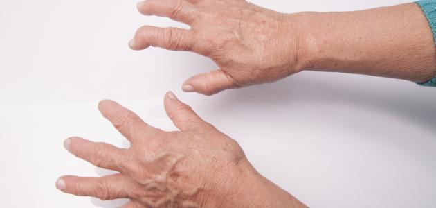 تشخيص الروماتيزم