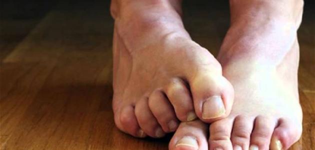 أعراض نقص المغنيسيوم والبوتاسيوم