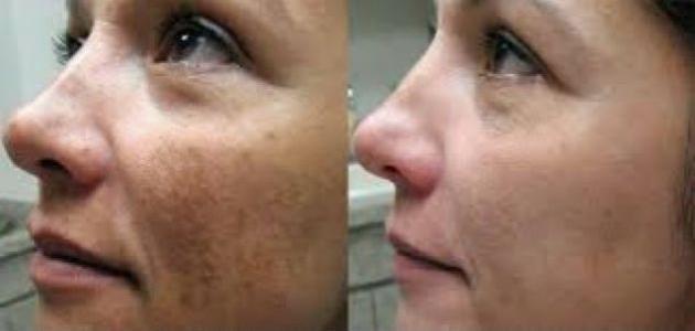 طرق لإزالة آثار الحروق من الوجه