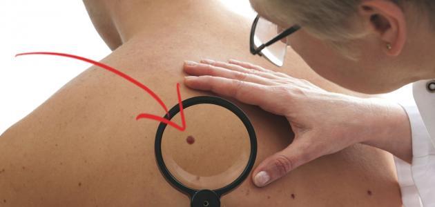 أسباب ظهور بقع سوداء في الجسم
