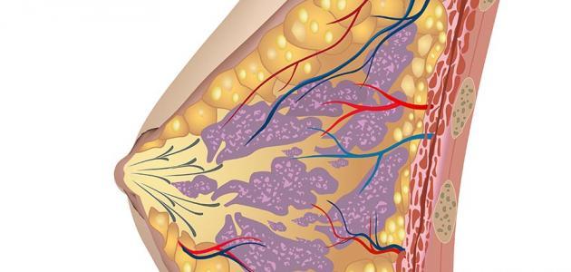 شكل سرطان الثدي النسيجي