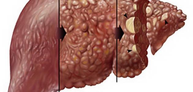 أسباب مرض تليف الكبد