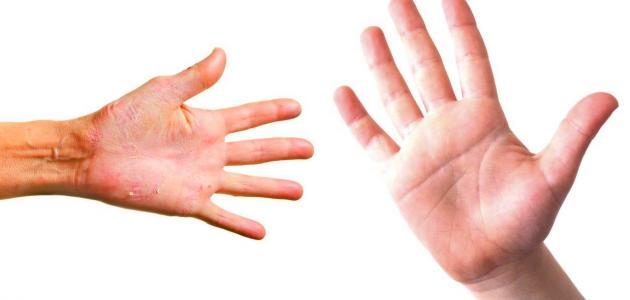 علاج لجفاف اليدين