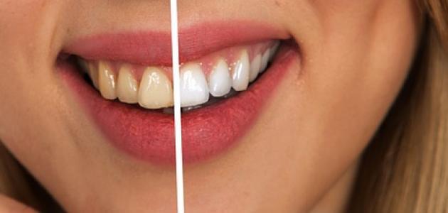 كيف ابيض أسناني