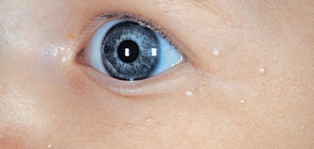 ظهور بقع بيضاء في الوجه عند الأطفال
