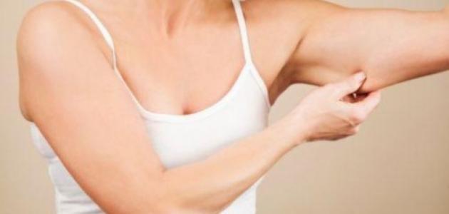 علاج ترهلات الجلد