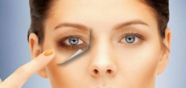 علاج نهائي للهالات السوداء تحت العين
