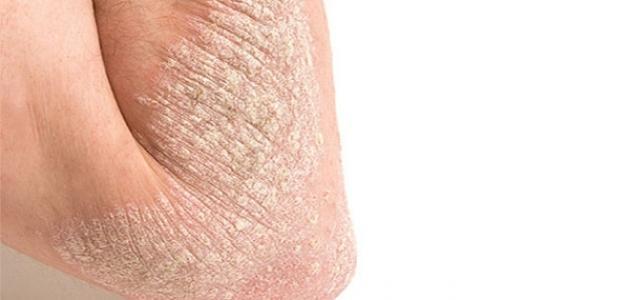 أعراض نقص فيتامين د على الجلد