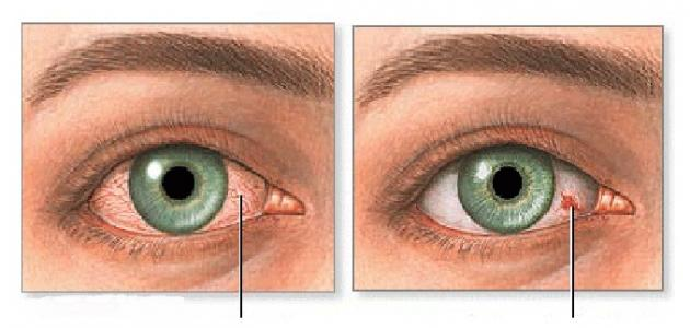 ما سبب اصفرار العين