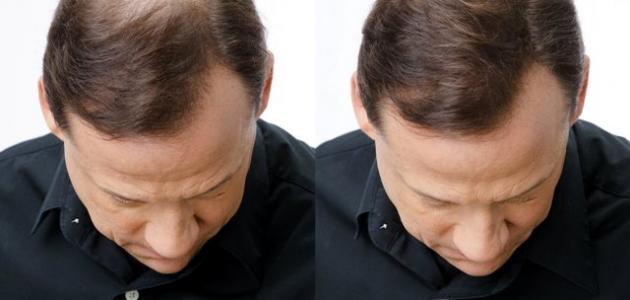 علاج تساقط الشعر والصلع عند الرجال