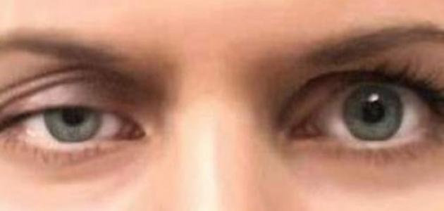 الغدة الدرقية وأمراض العين