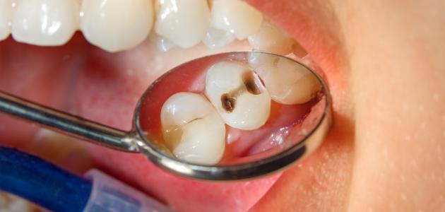 أسباب نخر الأسنان