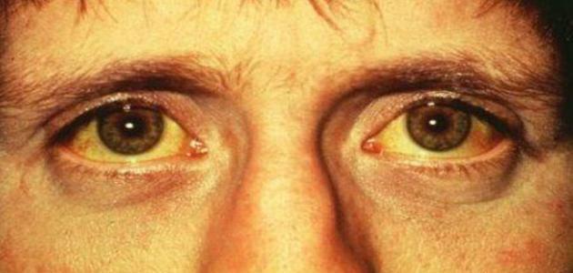 ما سبب اصفرار الوجه