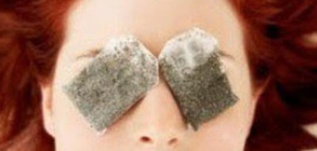 كيفية إزالة هالات العين السوداء