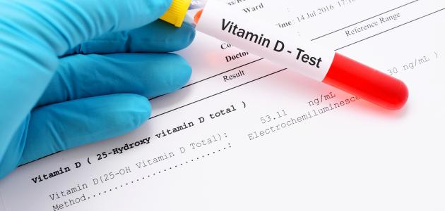 النقص الحاد في فيتامين د