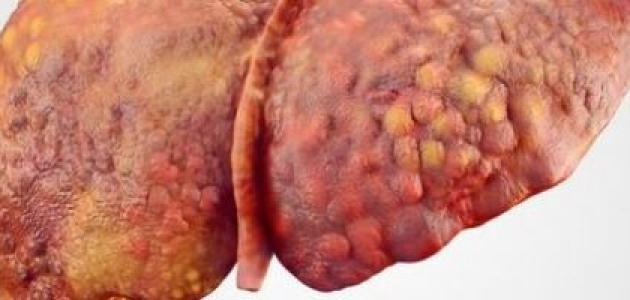 سبب ارتفاع إنزيمات الكبد للحامل