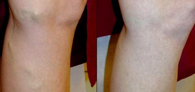 كيفية التخلص من دوالي الساقين