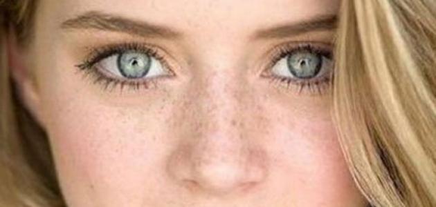 كيفية التخلص من النمش على الوجه