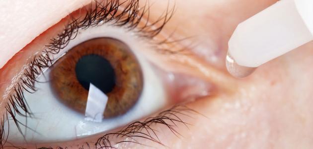 علاج أعراض حساسية العين