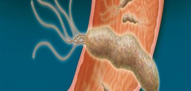 كيف تنتقل جرثومة المعدة