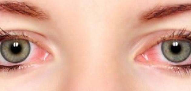 ما سبب حرقان العين