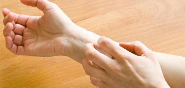 ما علاج حساسية الجلد