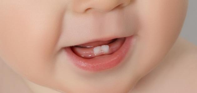 ما هي علامات التسنين عند الأطفال
