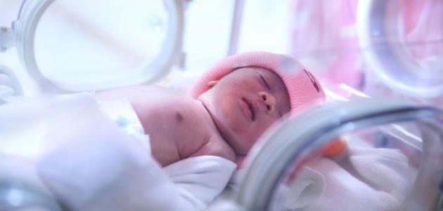 نقص البوتاسيوم عند الرضع