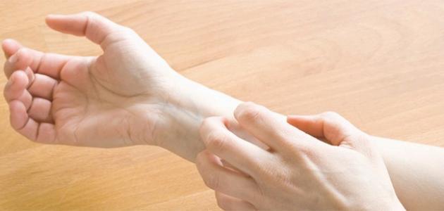 أعراض فطريات الجلد