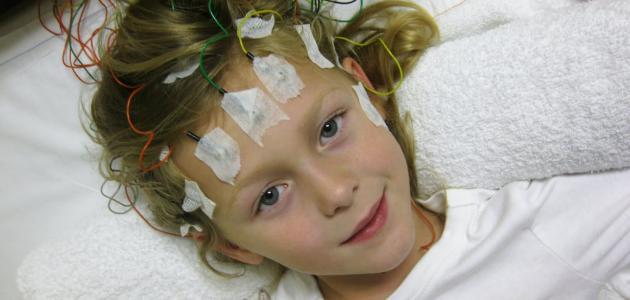 زيادة الكهرباء في الدماغ عند الأطفال
